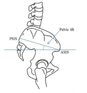 схема ASIS и PSIS
