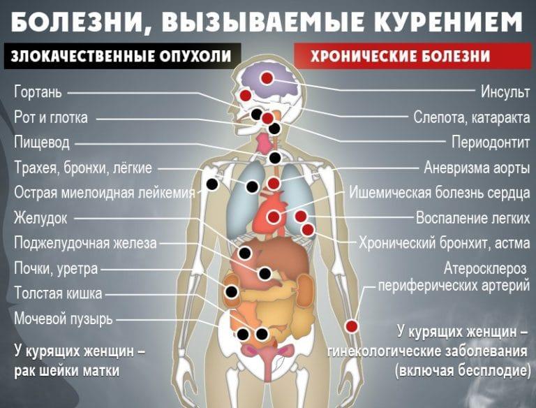 болезни от курения