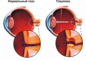 нагрузка на глаз - глаукома