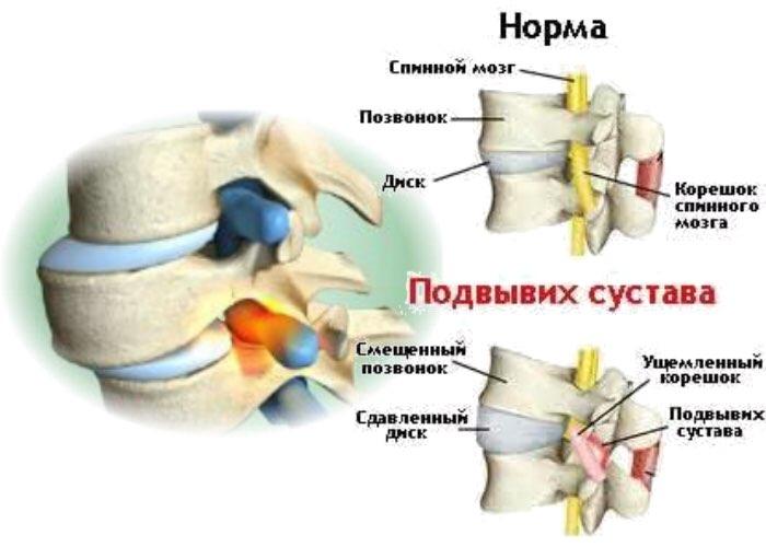 травмы суставных (хрящей) поверхностей
