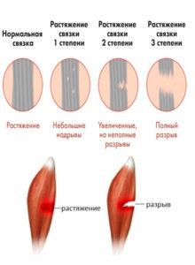 травмы и растяжение мышц и связок в тренажерке