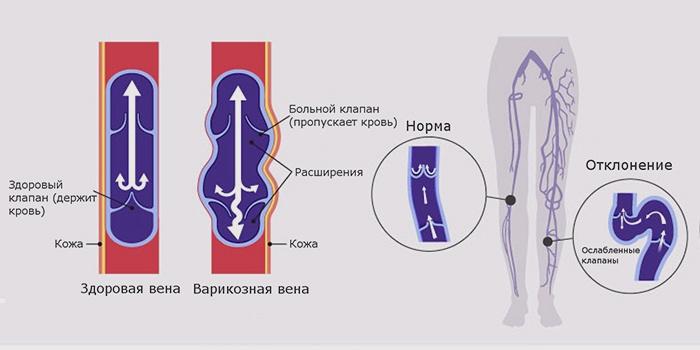упражнения ног при венах
