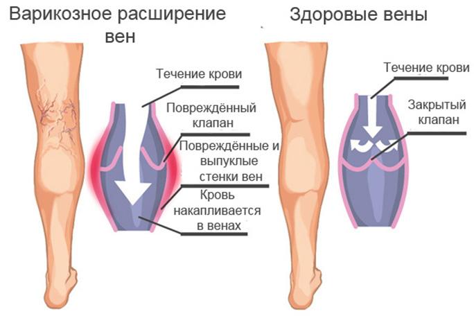 упражненияна ноги разрешенные