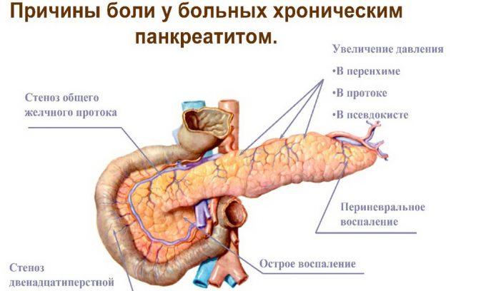силовые тренировки и питание при воспалении панкреас
