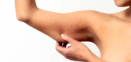 подтянуть дряблую после похудения - ущипнуть для проверки