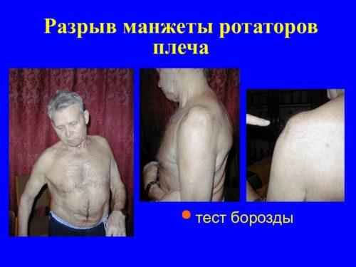 вращательная (ротаторная) манжета плеча - симптом борозды