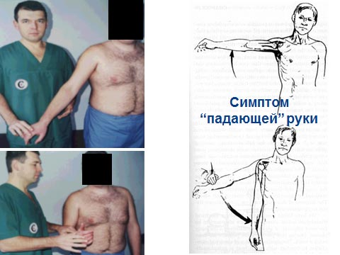 вращательная (ротаторная) манжета плеча - симптомы