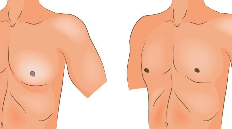 Ложная гинекомастия - как избавиться от лишнего жира на груди